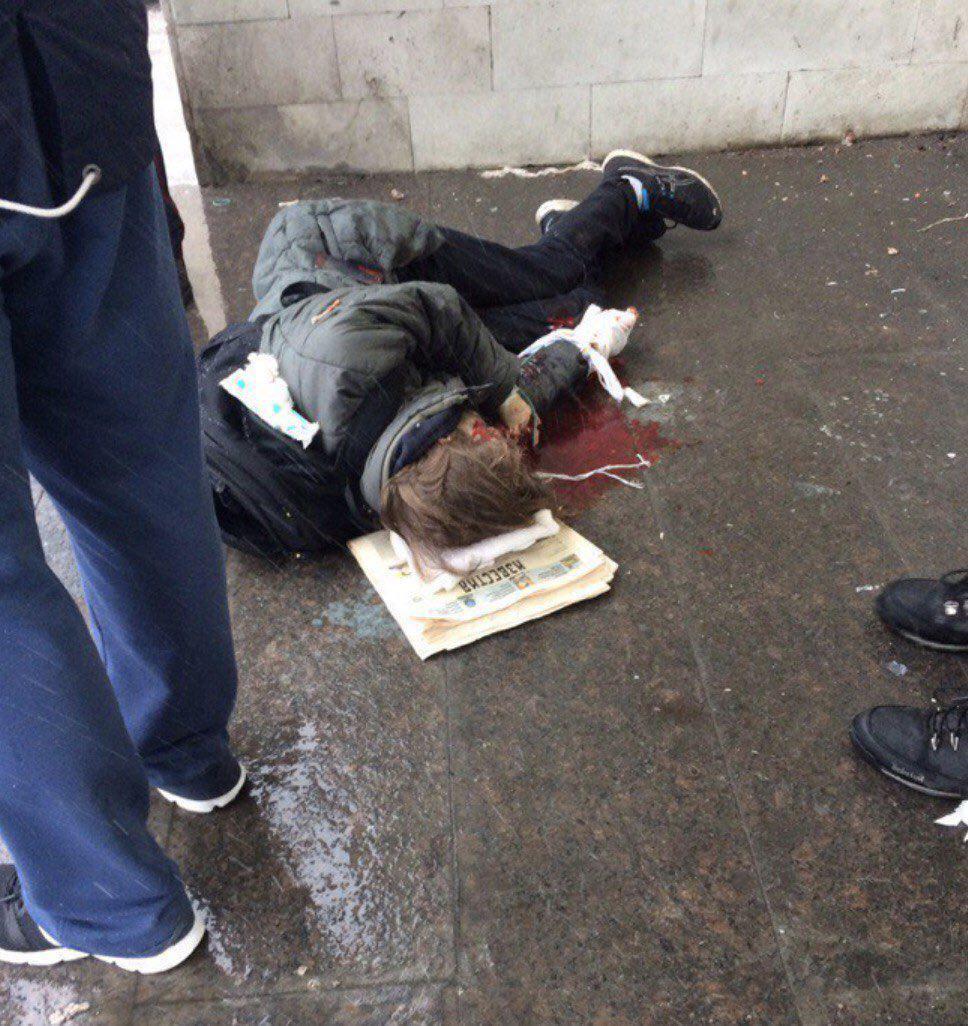 У подростка в Петербурге в руках сработало взрывное устройство